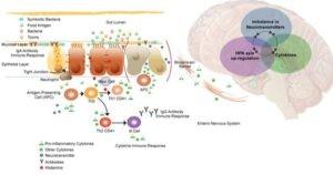 celiac brain