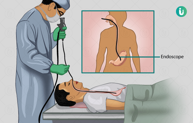 what is an endoscopy