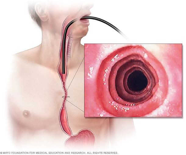 eoe throat scope endoscopy