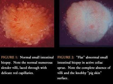 regular vs celiac intestine villi